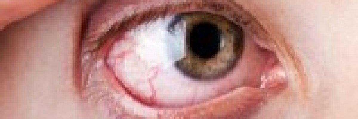 vérzés a szem magas vérnyomásában)