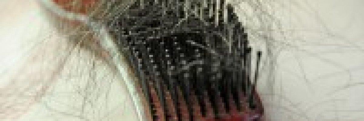 Hullik a hajam a véralvadásgátlótól! Van rá megoldás?