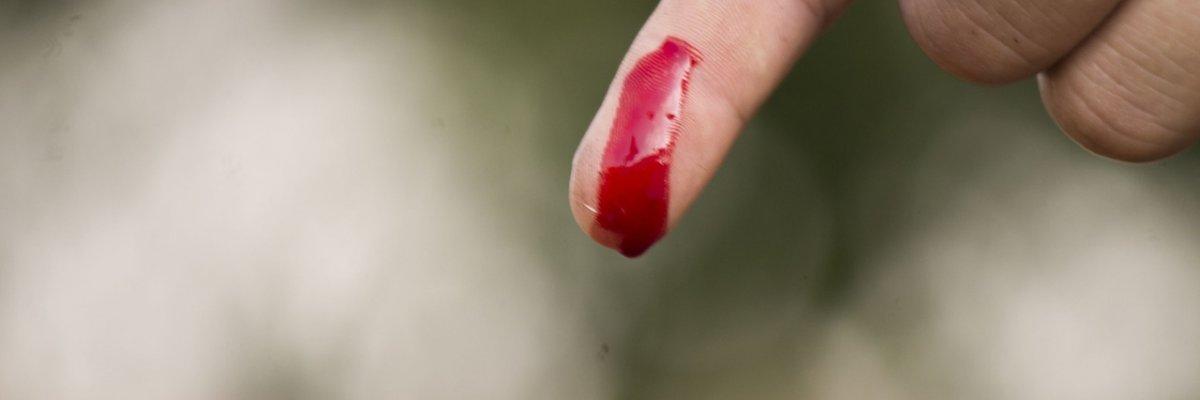 A véralvadásgátlót szedők legnagyobb félelme- vérzésveszély