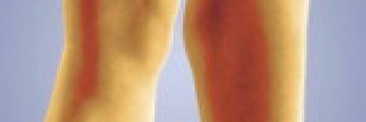 A kanyargós visszerek vénás trombózishoz vezethetnek