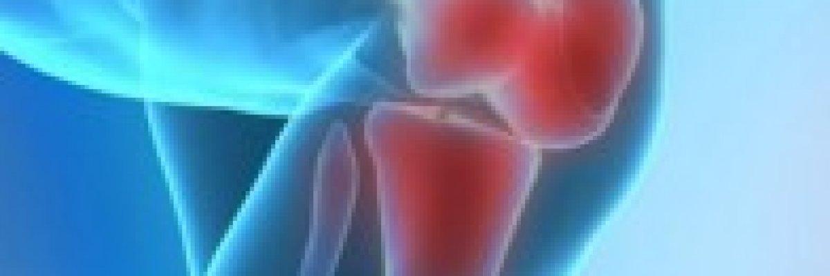 Trombózishoz vezethet a reumás ízületi gyulladás
