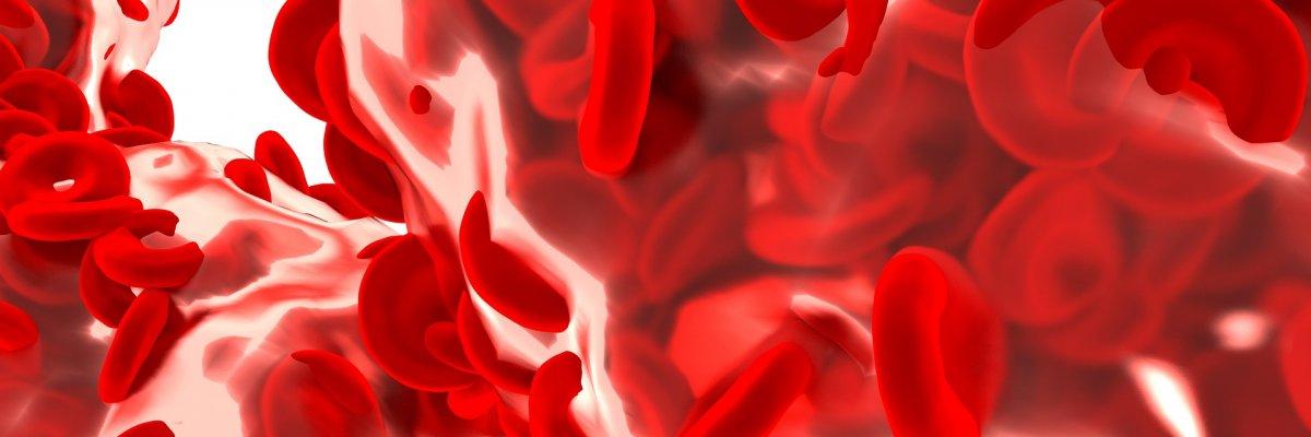 DIC- amikor a véralvadási rendszer összeomlik