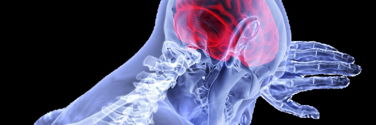 Teendők és vizsgálatok agyi érkatasztrófa után