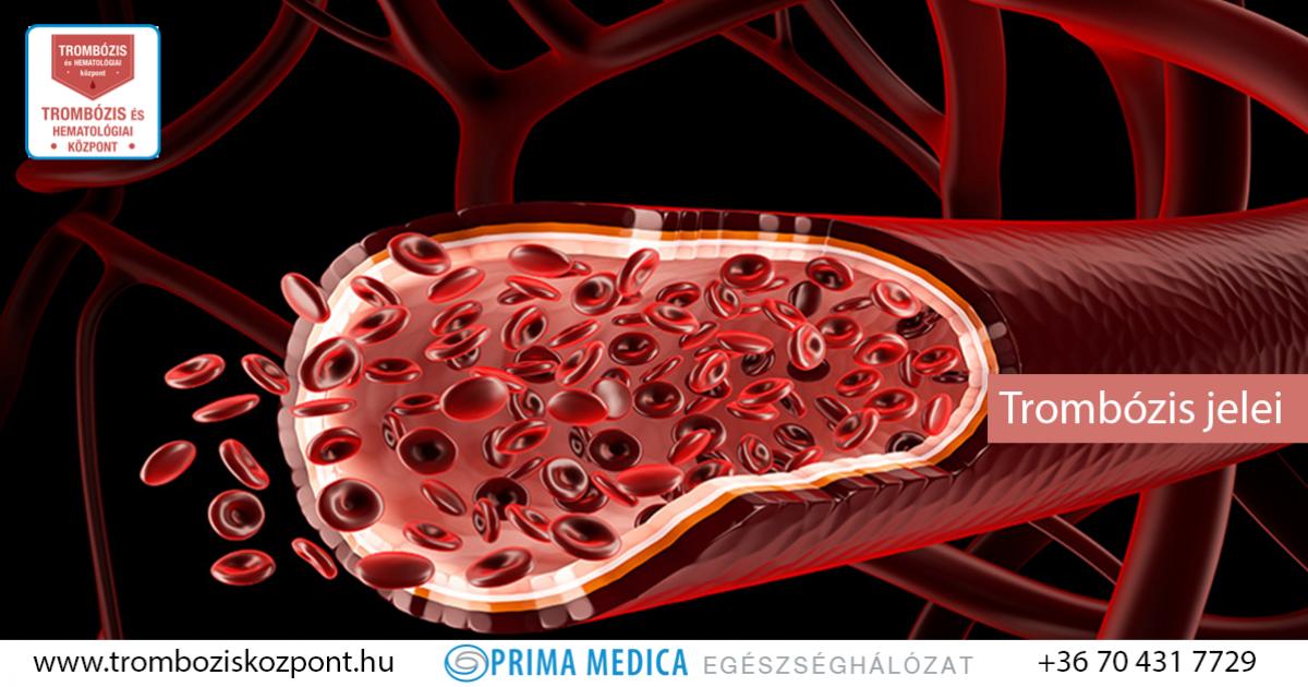 Mi a bél trombózis és mi vezethet?