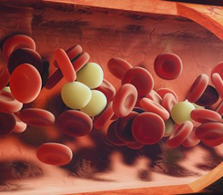 Aplasztikus vérszegénység