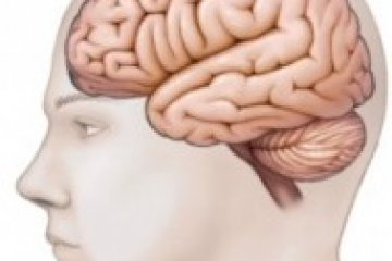 Nem csak a lábban, az agyban is kialakulhat trombózis