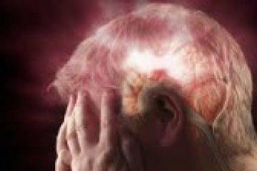 Kerülje el az újabb stroke-ot véralvadásgátló kezeléssel