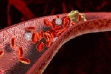 Nagyobb eséllyel okoznak trombózist a hormonális fogamzásgátló eszközök