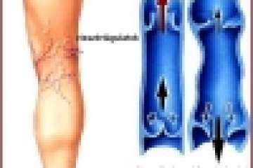 Trombózishoz vezethet az elhanyagolt visszérgyulladás