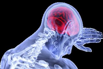 Trombotikus stroke- vérrög az agyban
