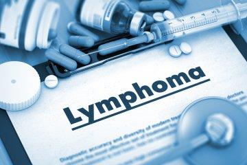 Leggyakoribb kérdések a limfómáról