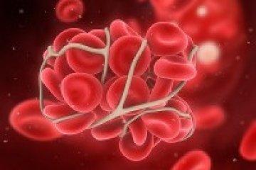 Tévhitek a trombózisról