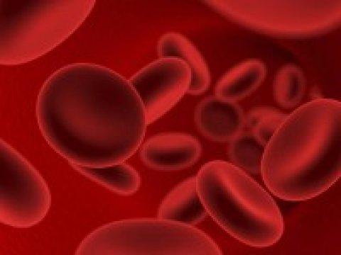 A véres vizelet magasvérnyomásra is utalhat