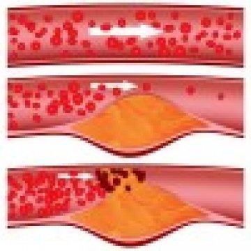 Vénás trombózis? Artériás trombózis? Mi a különbség?!
