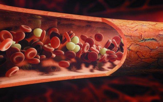 Trombofíliák- genetikai átok, ami trombózist okozhat