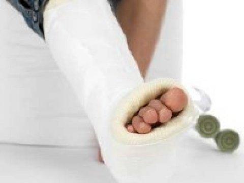 Megelőző kezelés szükséges, ha trombózis után gipszbe kényszerül