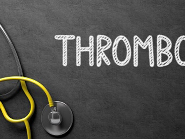 Trombózis