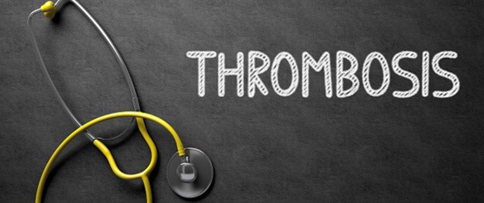 A trombózisról