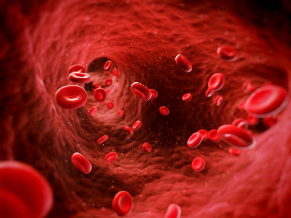 Koronavírus fertőzés trombózis, stroke kialakulása.