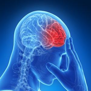 az agy rendellenességei látásvesztéssel)