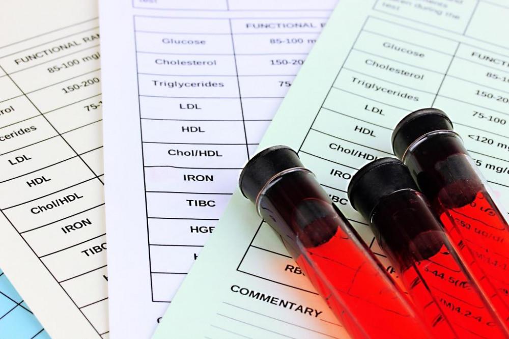 Laborvizsgálattal kimutatható a B12 vitaminhiány.